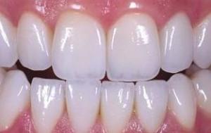 Фото: Циркониевые зубные изделия