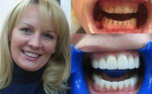 Фото: Естественность зубов