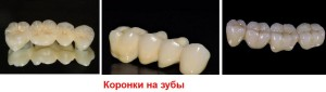 Какие бывают коронки на зубы?