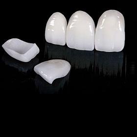Керамические виниры— восстановление внешнего вида зубов