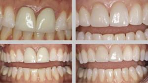 Фото: Какие коронки на зубы лучше?