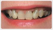 Фото: Зубной кариес