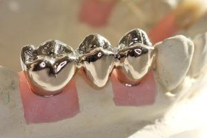 Металлические коронки— надежная реставрация жевательной группы зубов