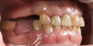 Фото: Утрачены жевательные зубы