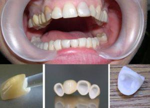 Фото: Поврежденные зубы