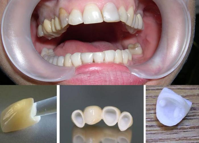 Как сделать зубную коронку 396
