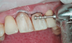 Фото: Препарирование зубов