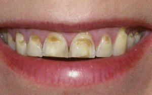 Фото: Разрушение зубной эмали