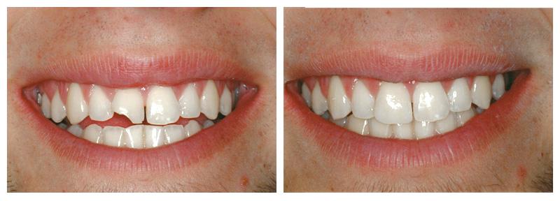 Фото: Реставрация переднего зуба