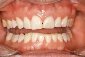 Фото: Зубной скрежет