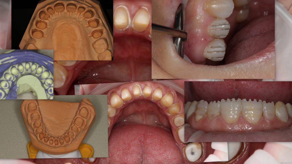 Протезирование зубов в северодвинске цены отзывы