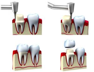 как ставится коронка на зуб фото