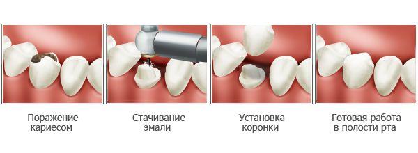 Болит левая сторона от поясницы до колена