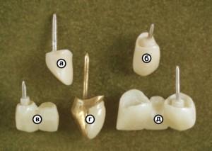 Фото: Виды зубных конструкций