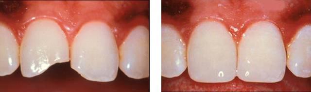 Фото: Восстановление сломанного переднего зуба