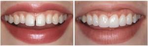 Фото: Устранение промежутка между зубами