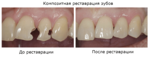 Фото: Композитная реставрация зубов