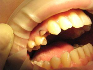 Фото: Коронка зуба разрушена