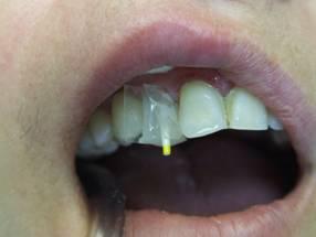 Фото: Восстановление культи зуба