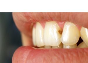 Фото: Кариес между зубами