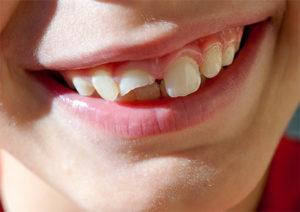 Фото: Перелом зуба