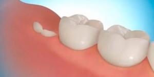 Фото: Регенерация зубов