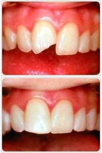 Восстановление сломанного переднего зуба — как нарастить фронтальный зубной ряд?