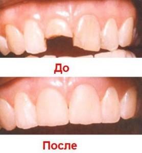 Фото: Наращивание зуба