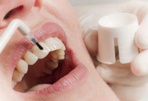 Фото: Лечение у стоматолога
