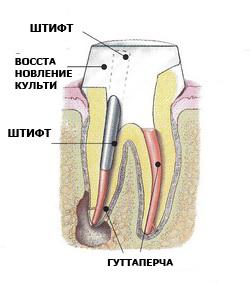 Наращивание зубов на штифт — восстановление зубного ряда при сильном повреждении
