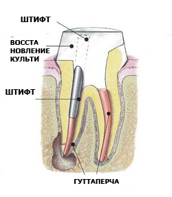 Фото: Наращивание зубов на штифт