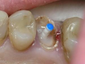 Фото: Восстановление зубного ряда