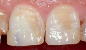 Фото: Зубные пятна