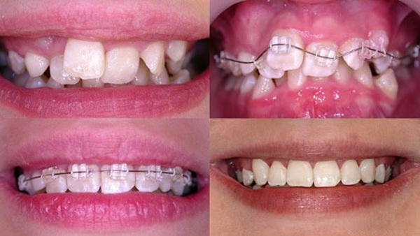 Выравнивание зубов брекетами до и после фото