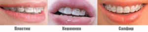 Фото: Виды прозрачных брекетов