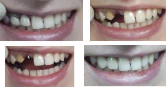 Больно ли поставить коронку и как ставят коронку на зуб