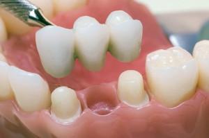 Фото: Зубной протез