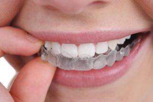 Фото: Капы на зубы