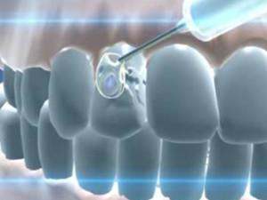 Лекарство от кариеса — средства для предотвращения заболеваний зубов