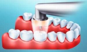 Лечение кариеса озоном— дезинфекция всей полости рта