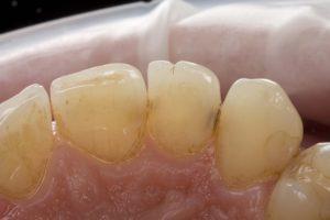 Фото: Потемнение зубных органов