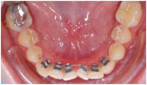 Фото: Брекеты на передние зубы