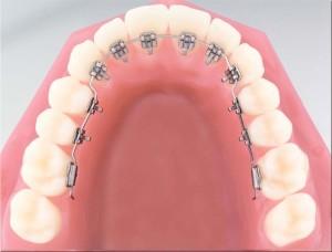 Лингвальнаябрекет-система 2D — эстетическая привлекательность зубов