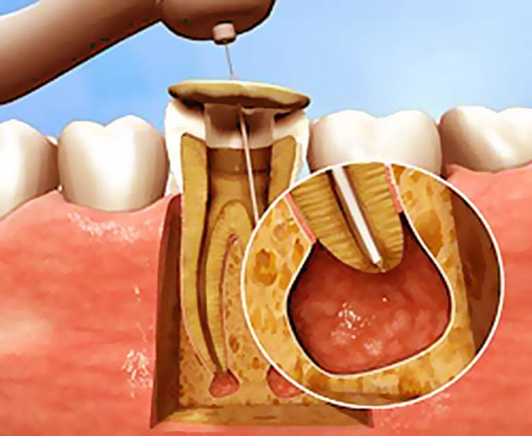 Киста зубная апикальная