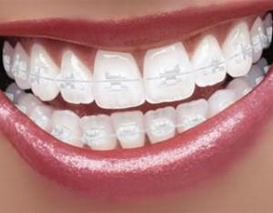 Белые брекеты — незаметные зубные конструкции