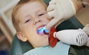 Фото: Применение лазера детям