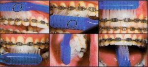 Фото: Техника чистки зубов