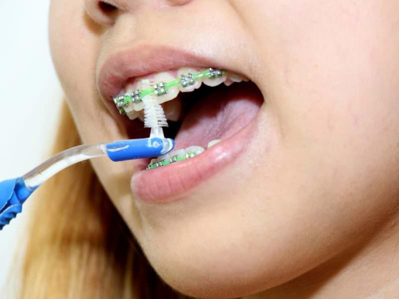 Ёршики для чистки брекетов на зубах