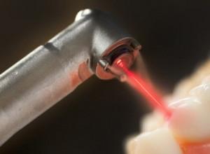 Фото: Лечение лазером