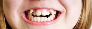 Фото: Неровные зубы
